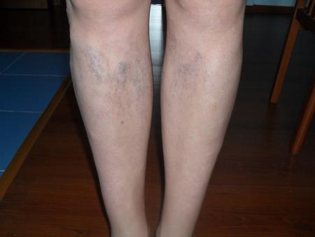 Опухоль на ноге что это может быть и как лечить