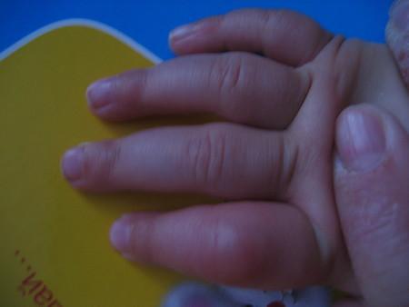 пальчик у девочки в