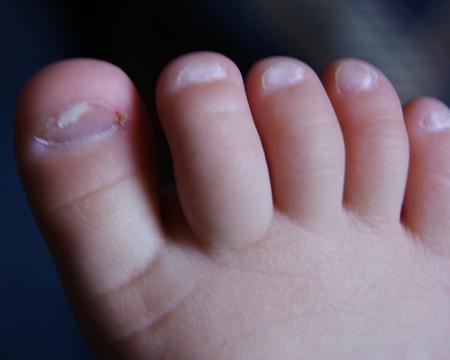 у ребенка слезают ногти на руках
