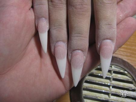 Какие виды грибка ногтей фото