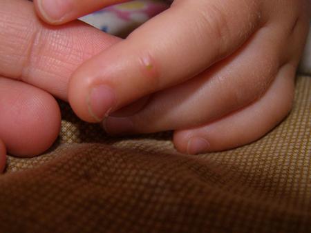 У ребенка кожа вся в пупырышках