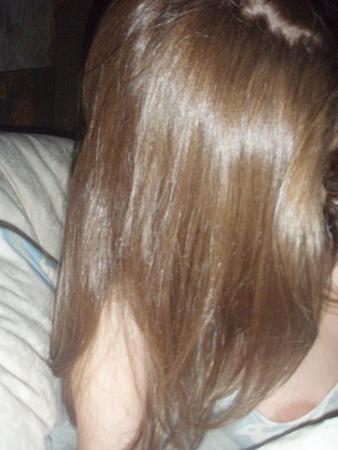 Выпадают волосы трескаются губы