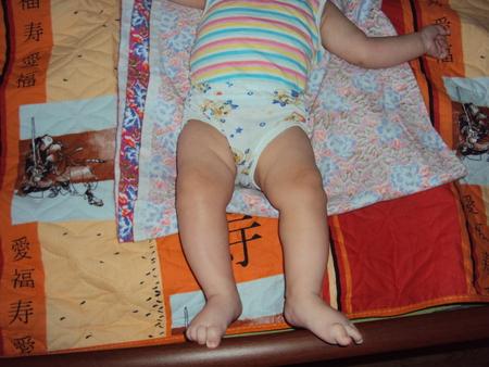 Разные складки на ногах у детей 100