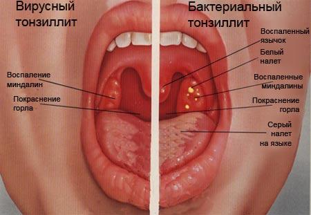 запах изо рта при тонзиллите как избавиться