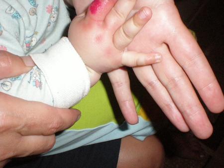 аллергия опухоль