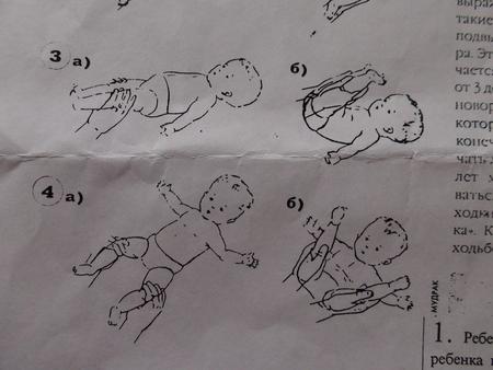 патолигии коленного сустава