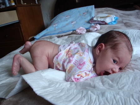 У младенца не растут волосы на голове