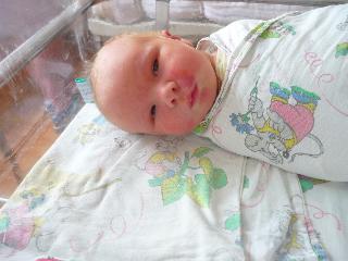 гемангиома у новорожденного на веке фото