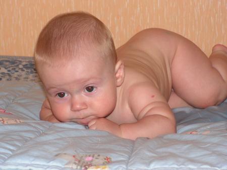Выпадают волосы у ребёнка 3 месяца