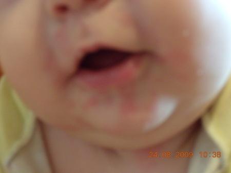 аллергия на смесь нэнни