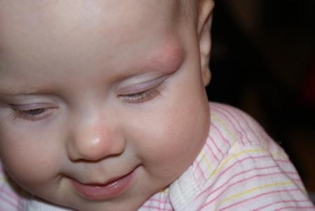 Гематома на брови у ребенка