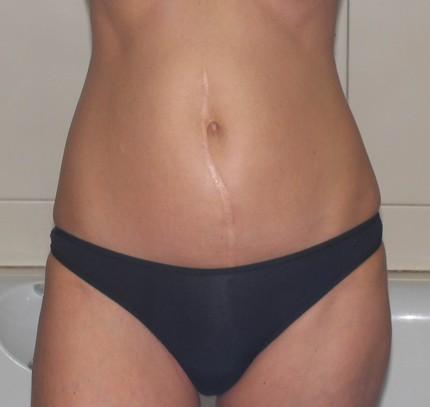 фото узи беременность 17 недель